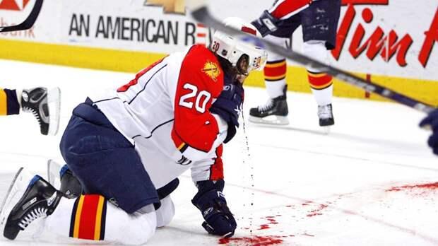 Жуткая травма хоккеиста. Зеднику перерезали коньком сонную артерию, он потерял 2 литра крови