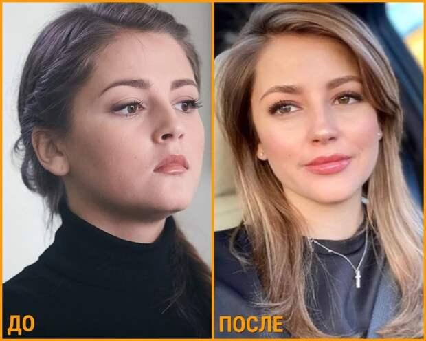 Знаменитые девушки, которые потеряли индивидуальность увеличив губы
