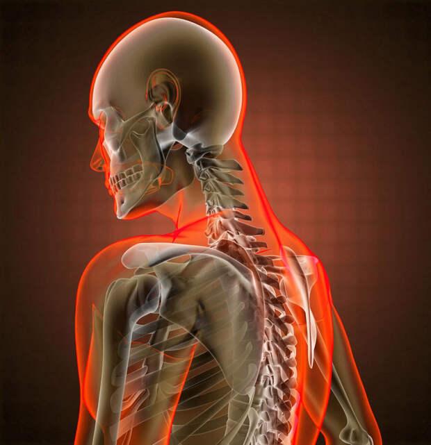 Как снять головную боль без таблеток: Советы кинезиологов