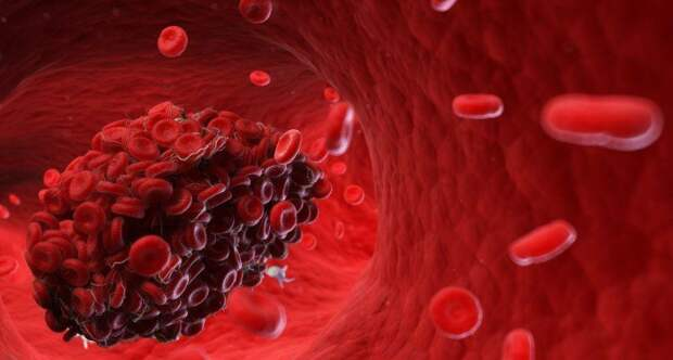 Симптомы сгустка крови в сосудах