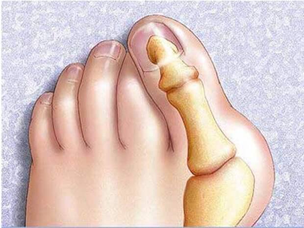 Картинки по запросу шишка на пальце ноги