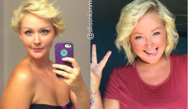 Быть худым — не значит быть счастливым: американка меняет представление о фотографиях «до ипосле»