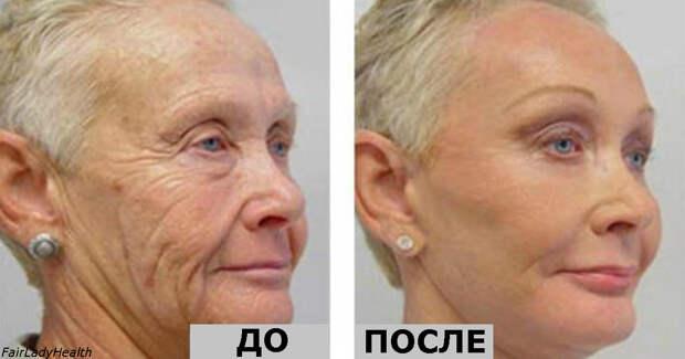 Ей 64, но все завидуют ее лицу без морщин! Ее тайна - один-единственный ингредиент!