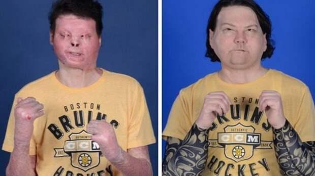 Получил второй уникальный шанс: Врачи пересадили парню лицо и руки