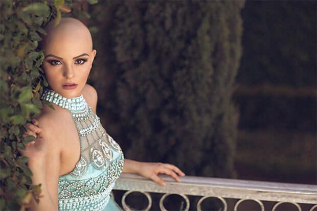 Смелая фотосессия без парика неизлечимо больной 17-летней девушки восхитила Сеть