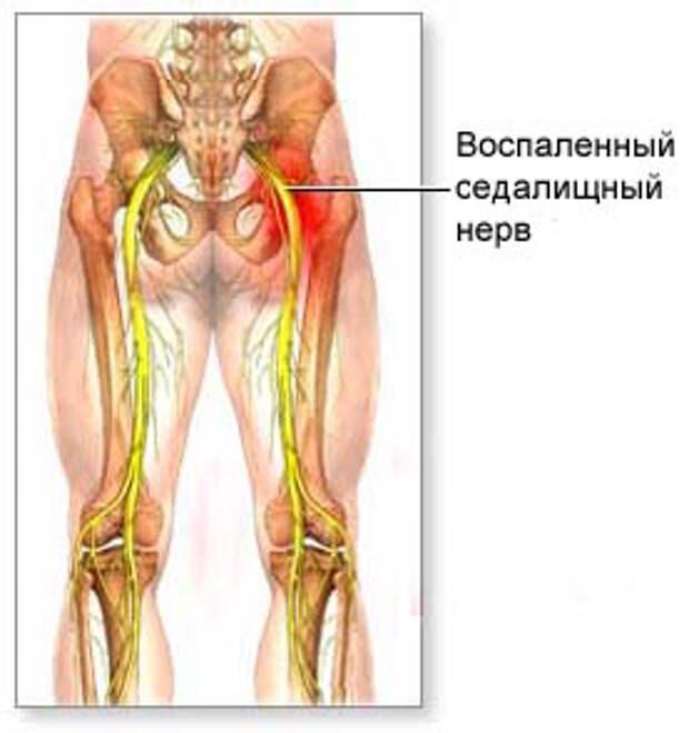http://www.diagnos.ru/my/img/a/ishias.jpg