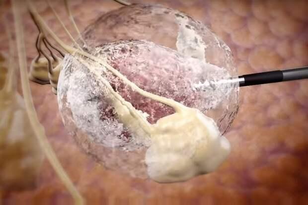 Система замораживания опухолей — настоящий прорыв от израильских докторов