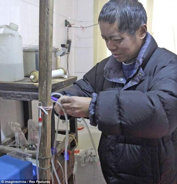 Не имея денег, китаец создал себе машину для диализа, которая помогает ему уже 13 лет диализ, китаец
