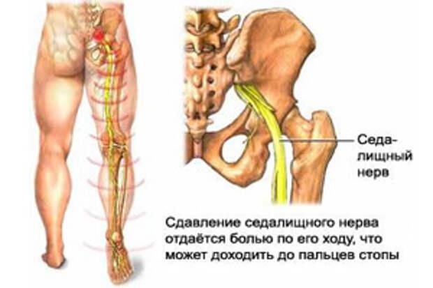 http://www.ayzdorov.ru/images/chto/zashemlenie-sedalishnogo-nerva34.jpg