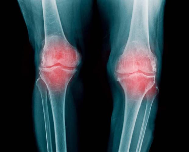 Покалывание в суставах: Причины и лечение