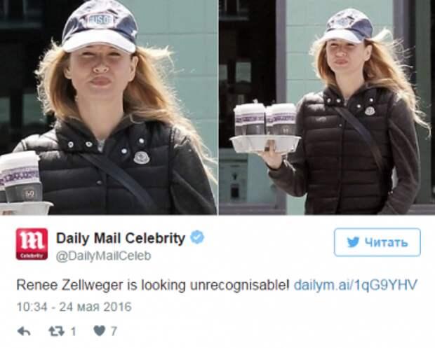 СМИ: Рене Зеллвегер сделала пластику губ