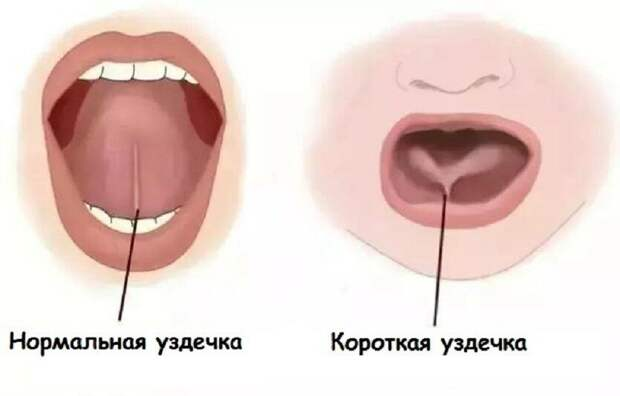 Что такое «короткая уздечка»? На самом ли деле она мешает развитию речи? Всегда ли необходимо хирургическое вмешательство?