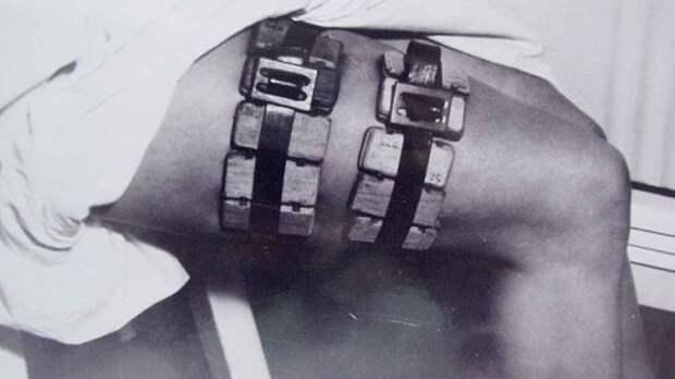 10 Ужасающих исторических медицинских инструментов