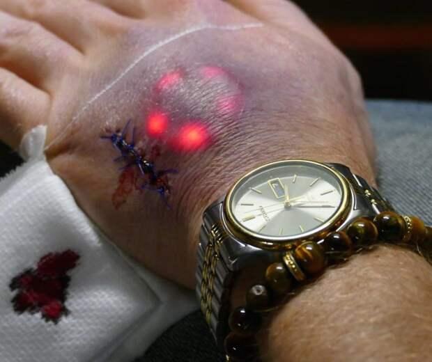 Биохакеры вживили себе под кожу имплантаты со светодиодами
