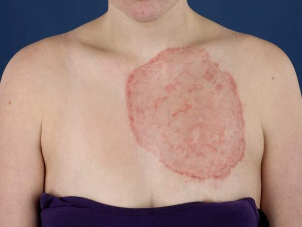 дерматомикоз лечение народными средствами