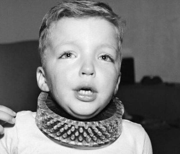 B 1950 году какой то шлимазл умудрился изобрести и проверить в действии The Neck Brush, Щетку для шеи, именно с идеей чистить детские шеи пока те заняты игрой. Бедные дети ! Надеюсь, умник успешно сгорел в аду!