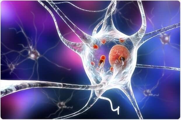 Причины, стадии и последствия деменции