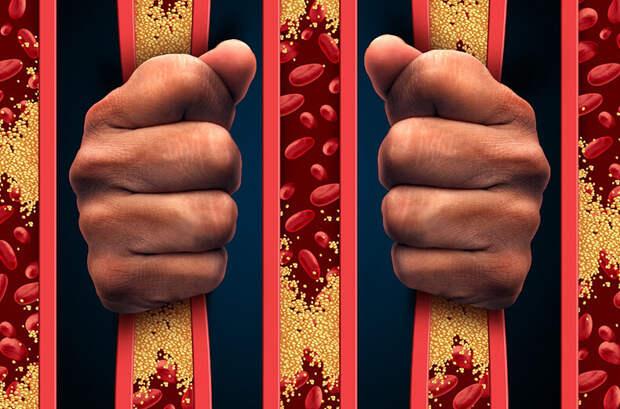 Мифы о холестерине и атеросклерозе, в которые пора перестать верить