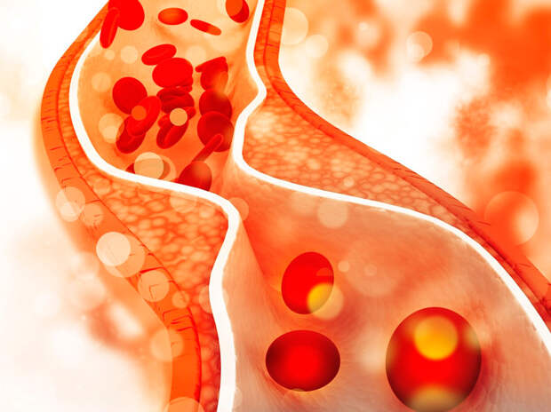 Важные факты о холестерине, о которых мало кто знает