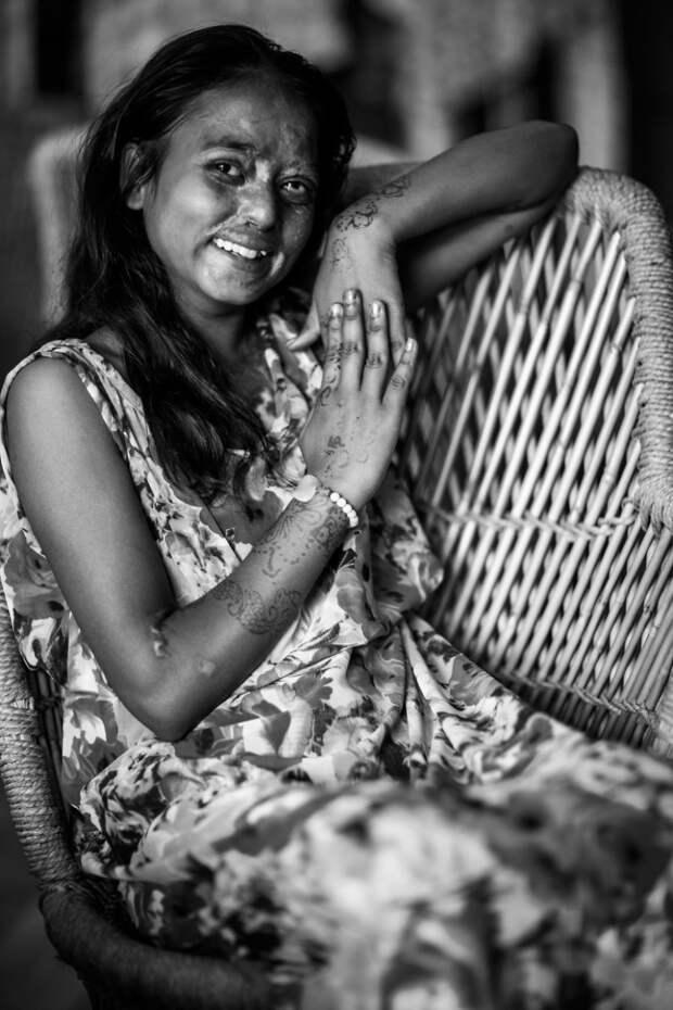 Портреты и истории людей, которые стали жертвами кислотных атак