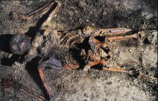 Скелет римского солдата, ставшего жертвой извержения Везувия в 79 году н.э. - Медицинская карта римского солдата | Warspot.ru