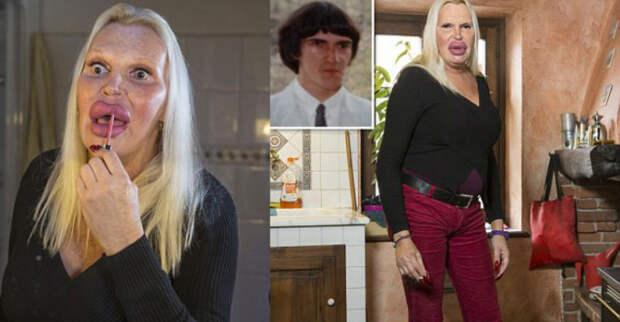 Эта женщина заплатила более 76 000 долларов за своё будущее идеальное тело - и вот результат transgender, пластическая операция, ужас