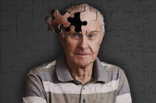 Француз 50 лет живет без мозга