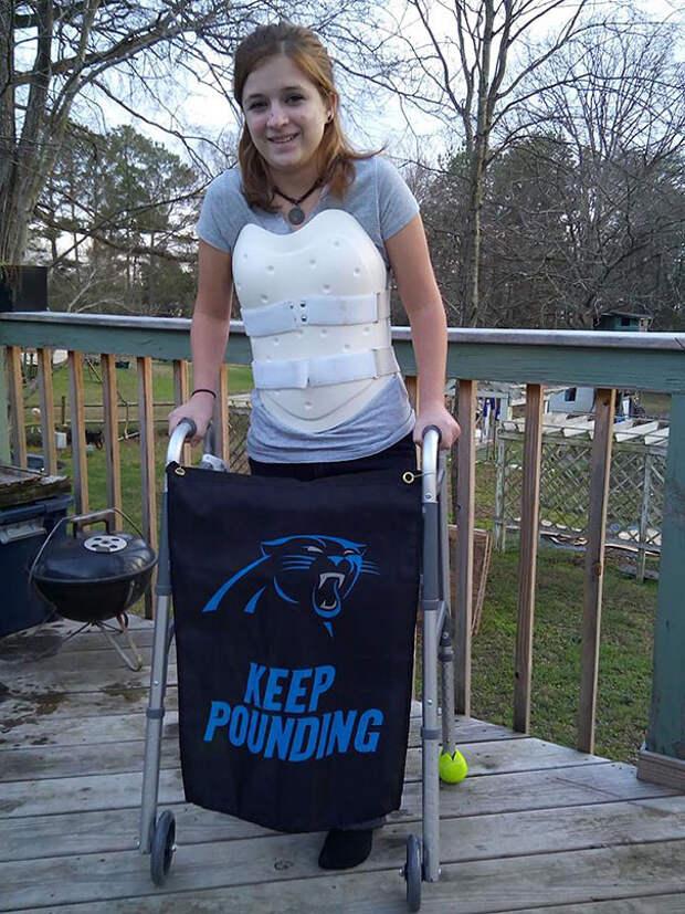Девушка, выжившая в автокатастрофе, превратила ортопедический корсет в стимпанк-броню