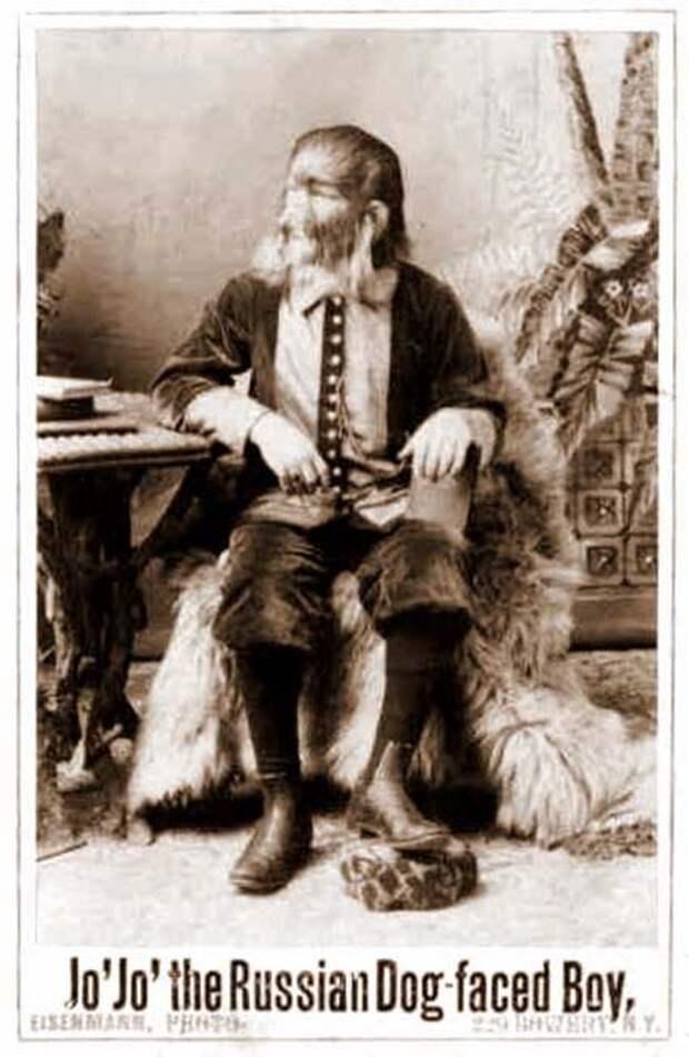 Фёдор Евтищев - мальчик с пёсьей мордой