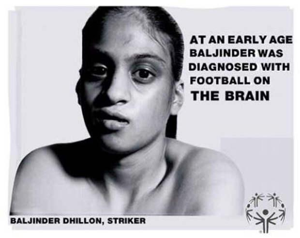 """Надпись: """"В раннем возрасте Бэлджинджер диагностировали футбол мозга"""""""