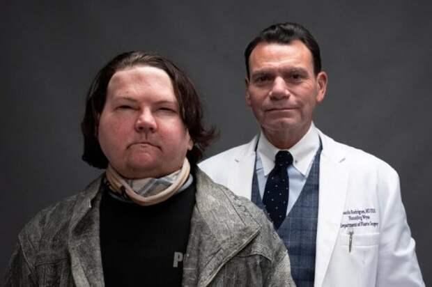 Пострадавшему в аварии американцу впервые в мире пересадили лицо и оберуки