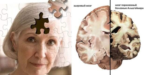 В России нашли препарат, сохраняющий нервные клетки при Альцгеймере