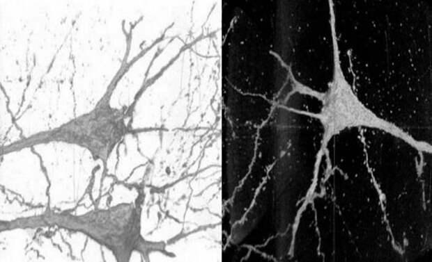 В мозгу людей с шизофренией заметили необычные нейроны