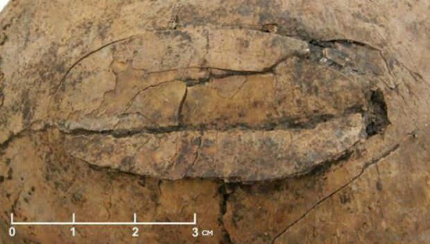 Археологи обнаружили следы доисторического массового убийства