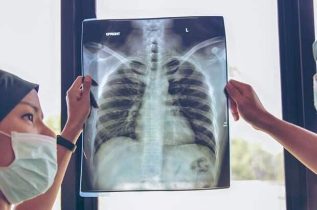 Заболеваемость туберкулезом в РФ достигла минимума за все время наблюдений
