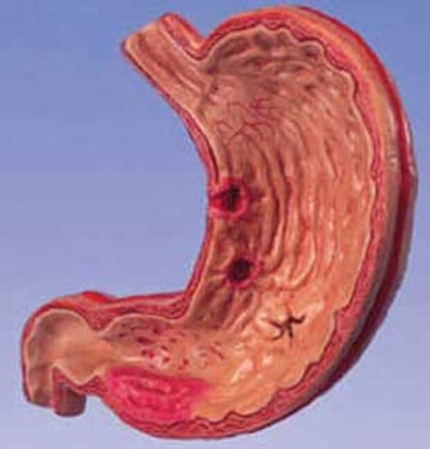 12 удивительных фактов о вашей пищеварительной системе