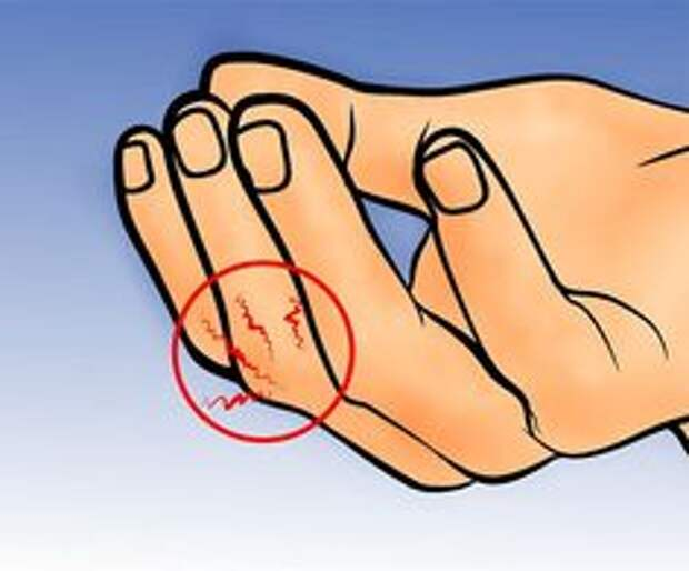 Особая точка на пальце – СОХРАНИ!