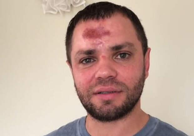 Лидер группы «Градусы» сел в Яндекс.Такси и попал в ДТП