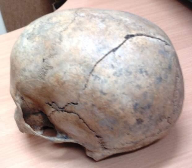 женский череп
