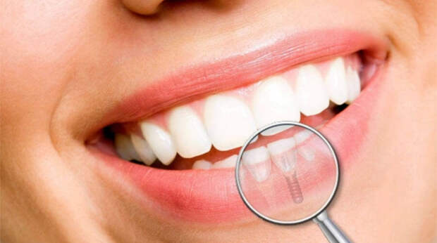 Имплантация зубов за один день: особенности и преимущества