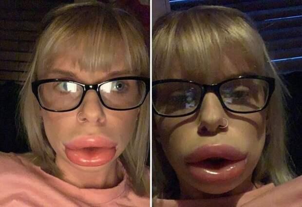 """""""Горшочек, не вари!"""": девушка показала эффект помады """"для увеличения губ"""