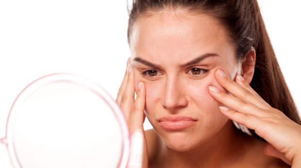 Жирная кожа лица: основные правила ухода