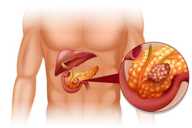 Минерал, который необходим организму для профилактики рака поджелудочной железы