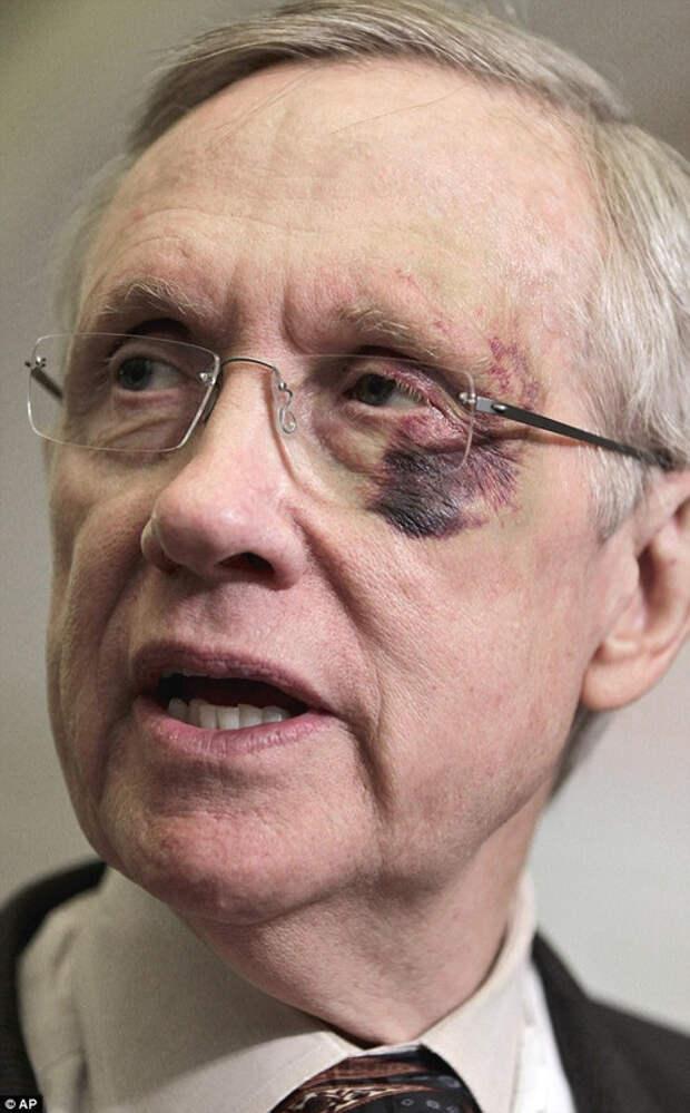 Гарри Рид был изображен с синяком вокруг левого глаза в 2011 году