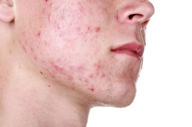 Дерматолог рассказал, как коронавирусная инфекция влияет на состояние кожи человека