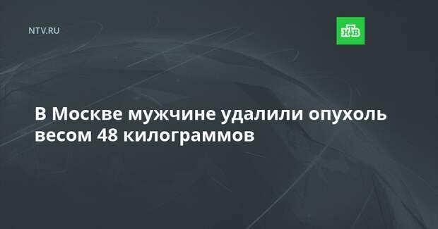 В Москве мужчине удалили опухоль весом 48 килограммов
