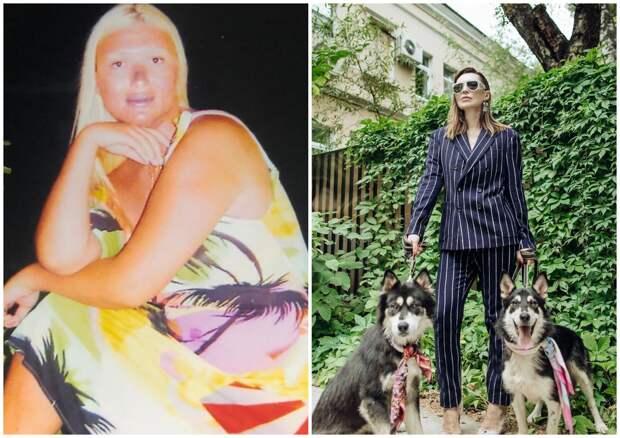 Экс-«фрейлина» Литвиновой показала фото до похудения на 60 кг