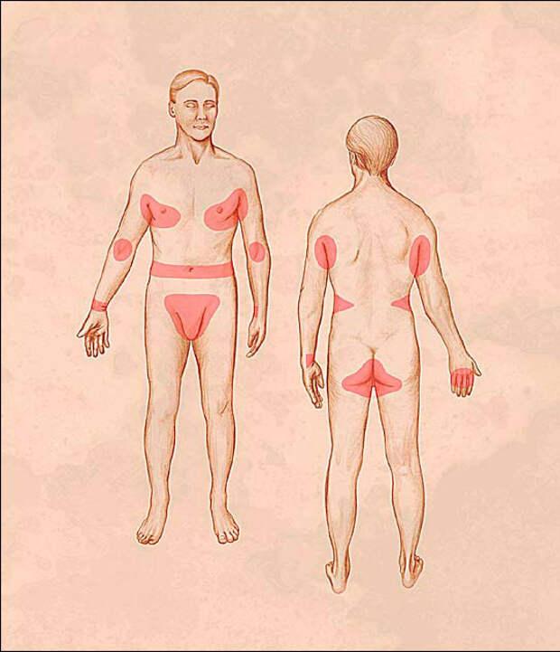 http://dermatovenerology.crimea.ua/wp-content/uploads/chesotka3.jpg