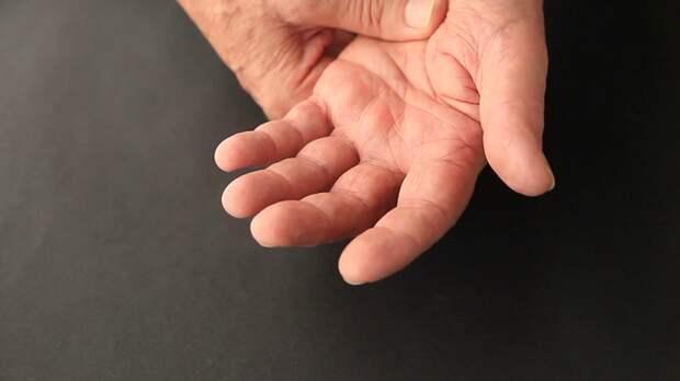 Заболевания, которые можно определить по руке