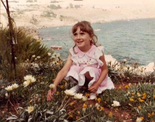 Лысые, смелые, гордые: женщины, которые научились жить с алопецией и полюбили себя без волос